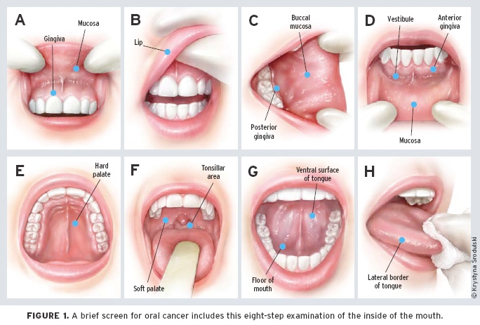 ORAL CANCER detection