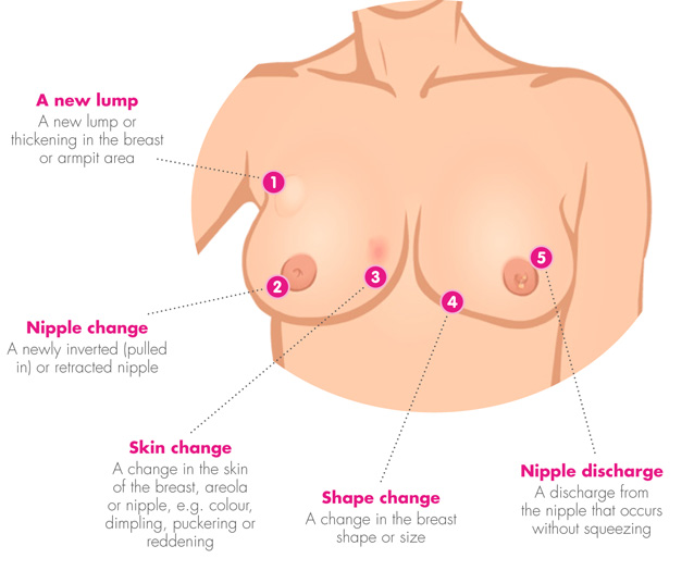breast change breast cancer