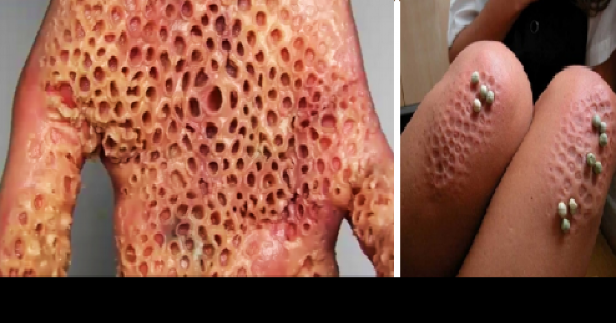 Trypophobia is a real terrifying thing and you definitely have it - What you can do with acorns a bit of health and embellishment ...
