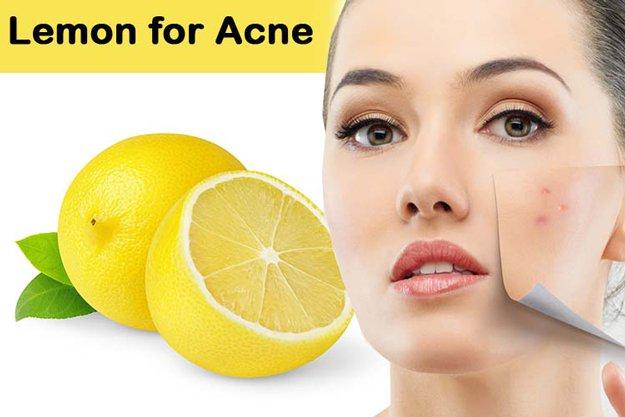 20 natural home remedies remedies using lemons