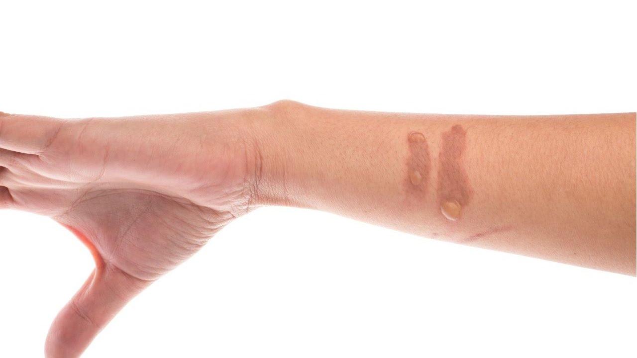 benefits of vicks vapor rub on feet