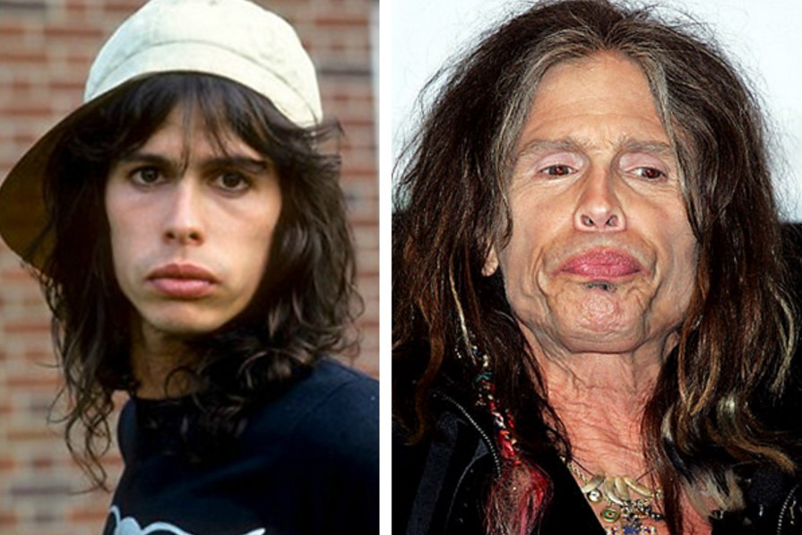 10 Beautiful Celebrities Before & After Drugs (Shocking ...