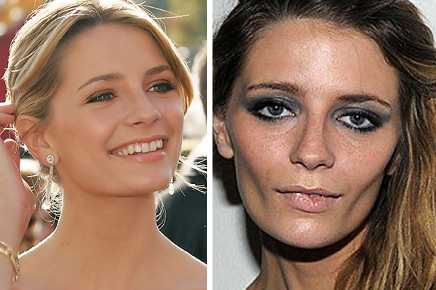 Mischa barton before and after