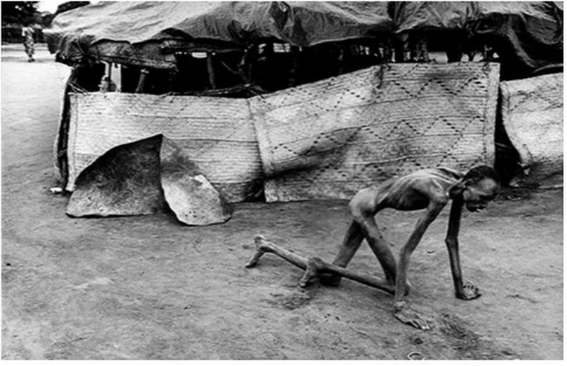 Disturbing picture of starvation in africa