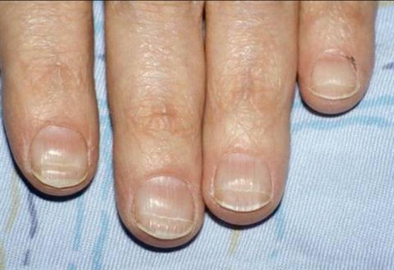 Поперечные волны на ногтях рук